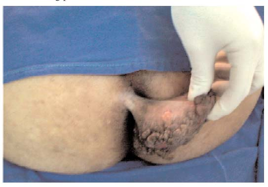 ... the specimen concluded to inflammatory fibrous polyp of the anal verge.